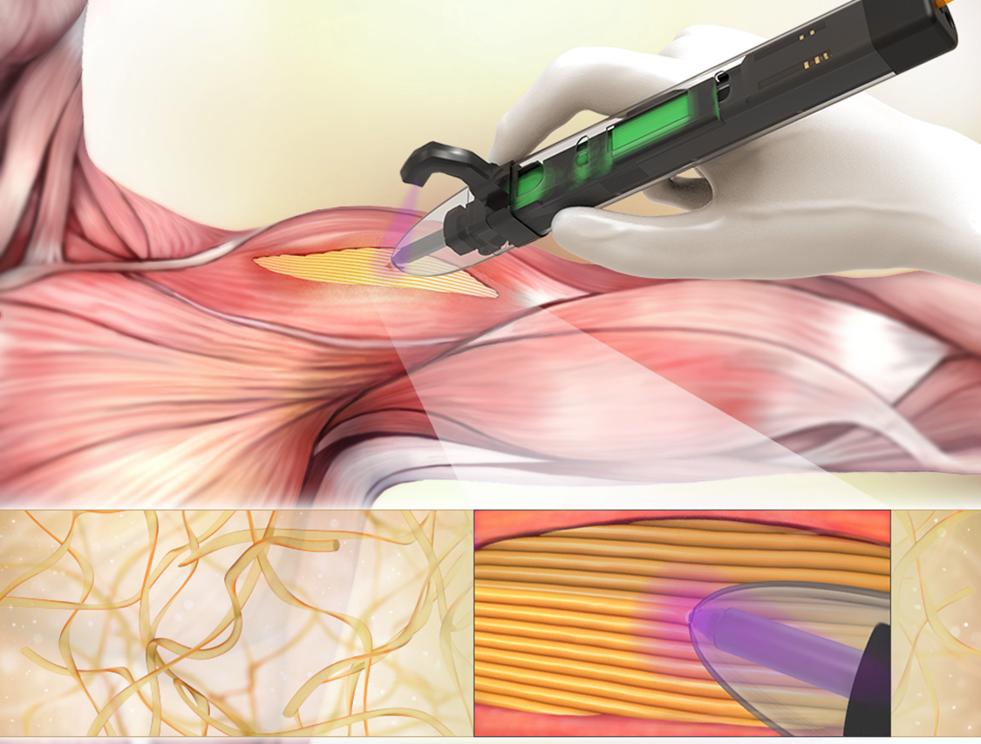 schemat bezpośredniego drukowania tkanek poprzez podręczną biodrukarkę, blog sygnis new technologies